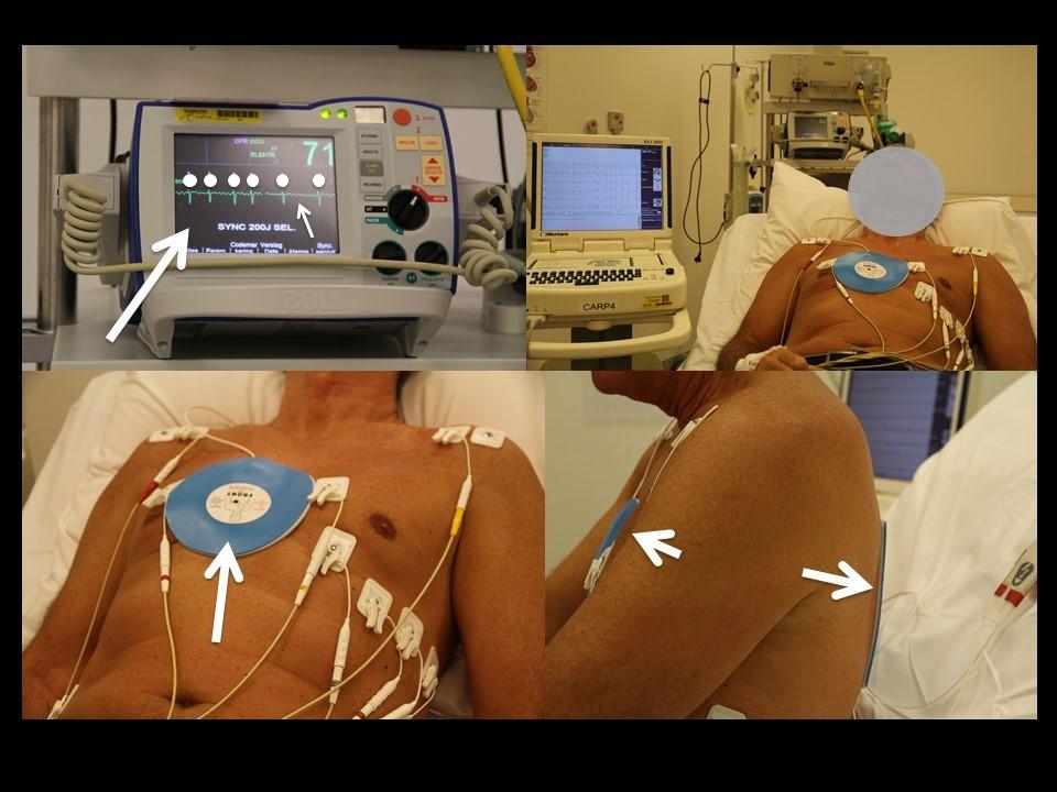 elektrische-cardioversie-atriumfibrilleren