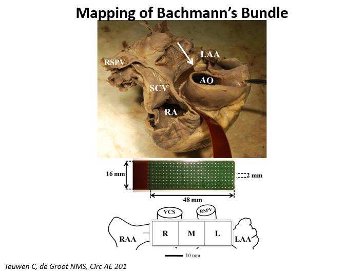 cardiac-mapping-technology-4